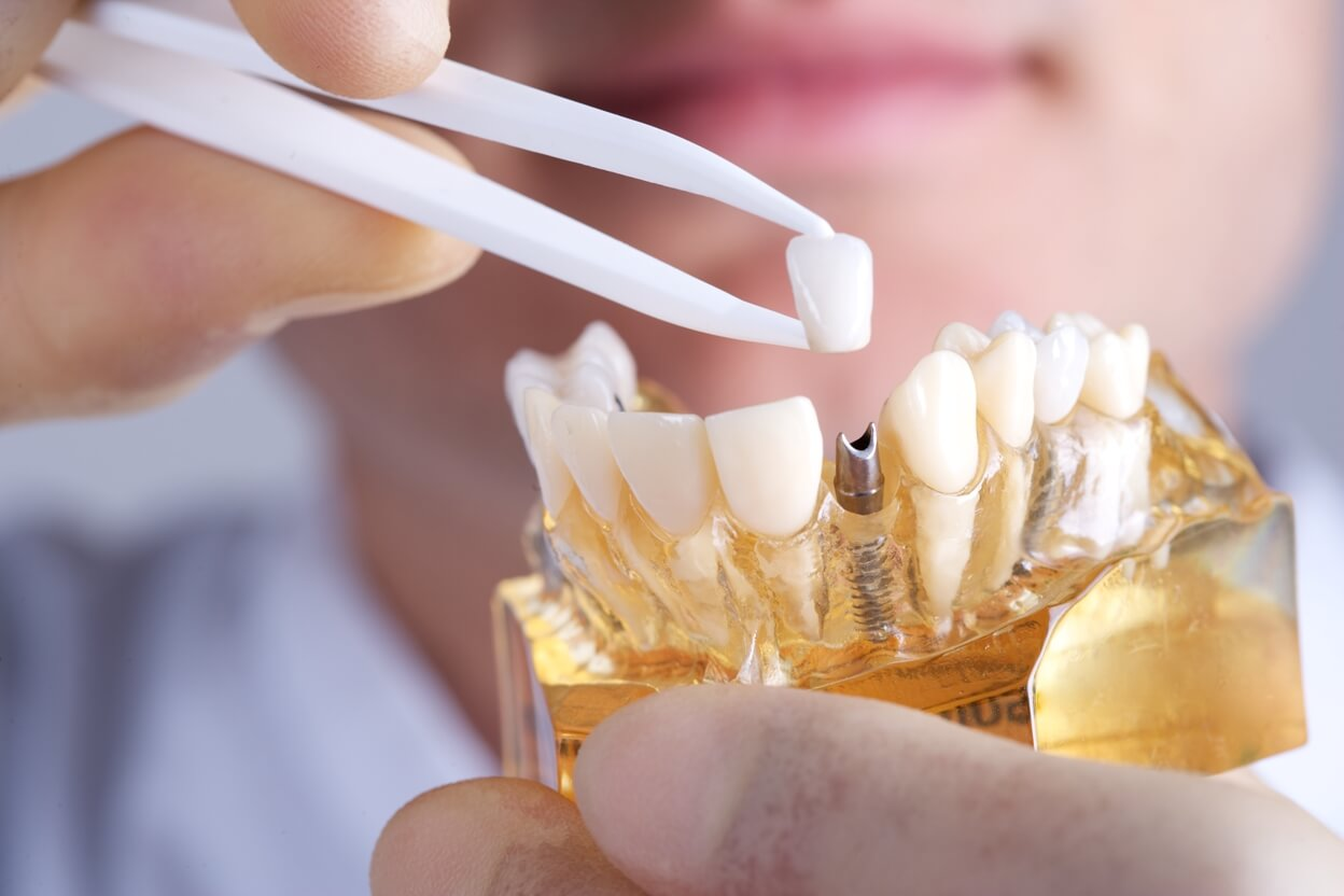 Dental implant cost and types overview