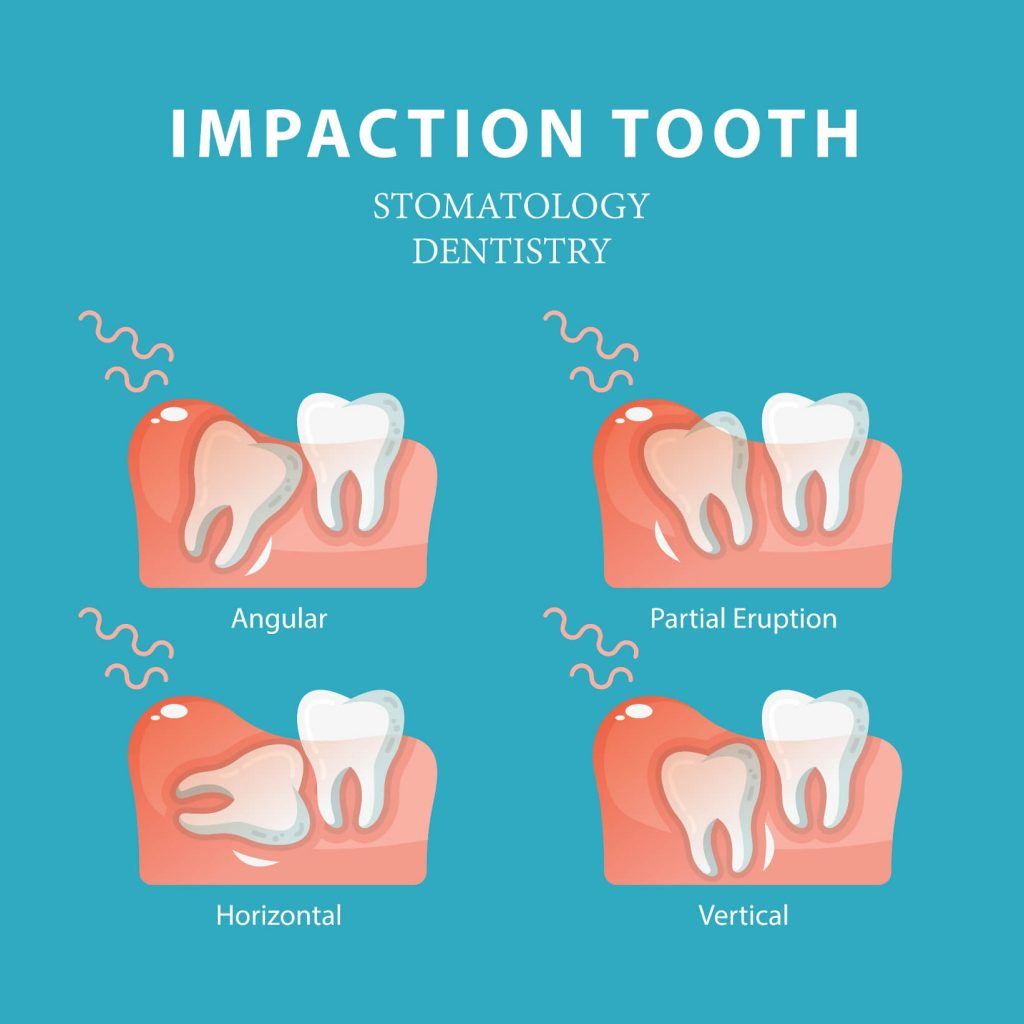 Tooth impaction