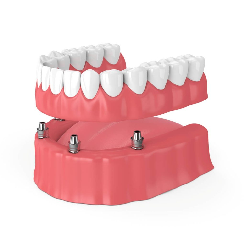 Subperiosteal dental implant image