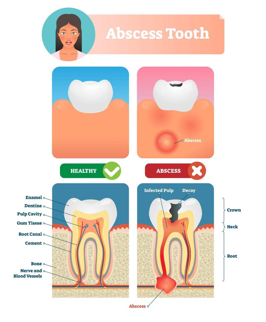 Healthy vs abscessed tooth comparison